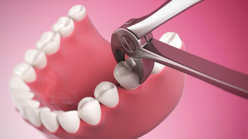 udalenie-zubov_5